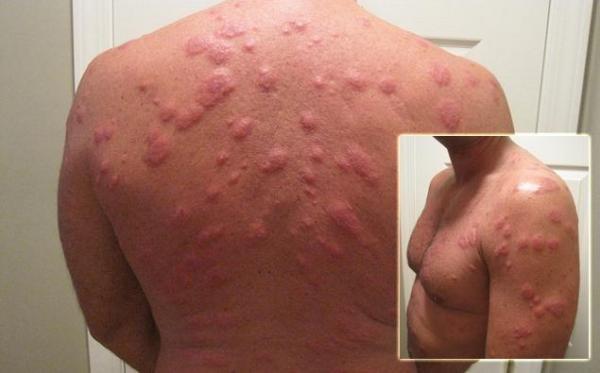 Укусы клопов могут вызвать аллергию на коже