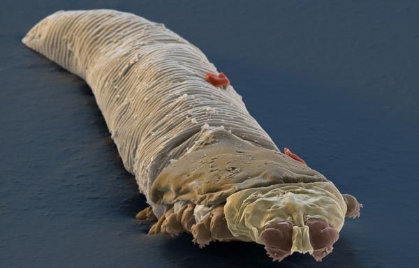 Ресничный клещ под микроскопом