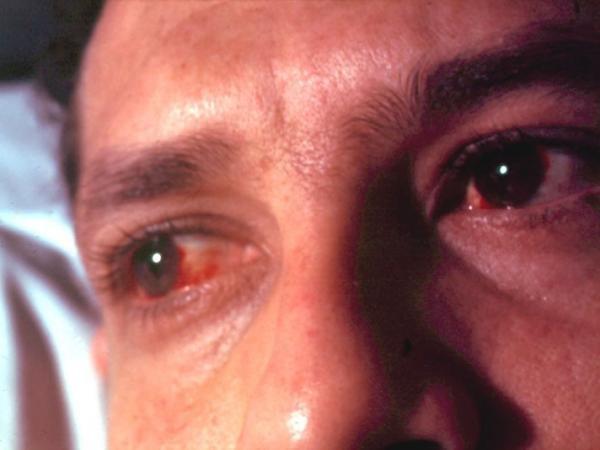 Покраснение глаз при демодекозе