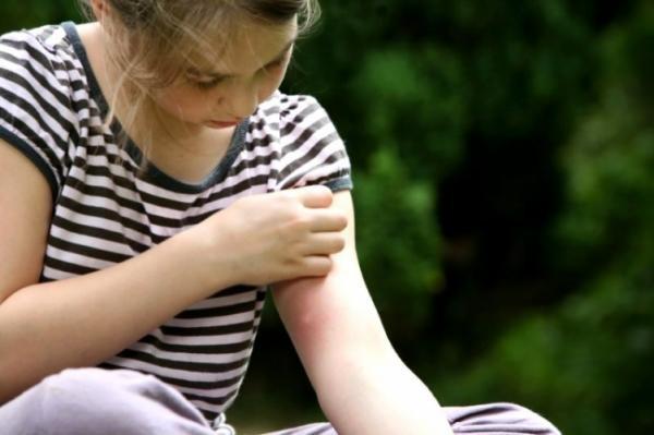 Можно заметить, что комар охотнее всего кусает ребенка, это неудивительно: детская кожа тоньше чем у взрослого человека, и капилляры находятся ближе к поверхности
