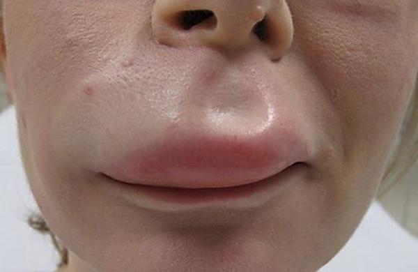 Очень опасна аллергия когда распухают губы, она может привести к удушью