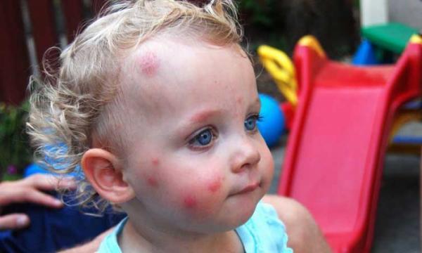 аллергия на укус комара фото у ребенка