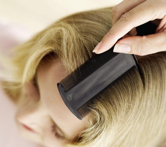 После нанесение 9% уксуса на волосы вшей будет легче вычесать