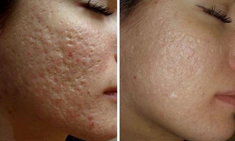 Даже после полного излечения от подкожного клеща на лице остаются рубцы, поэтому серьезно отнеситесь к профилактике этого заболевания