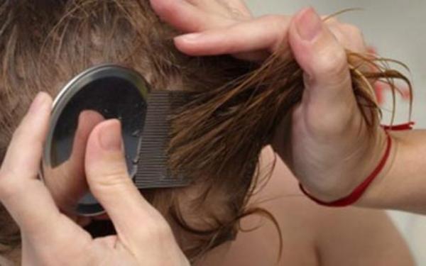Пользуется популярностью механический метод избавления от вшей с помощью специального гребня