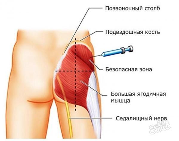 Инъекцию вводят внутримышечно