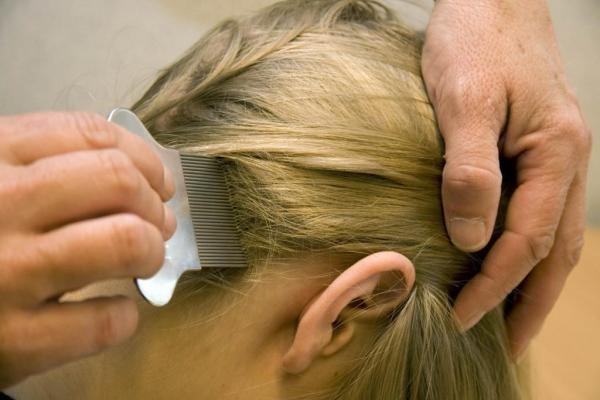 Перед вычесыванием обработайте голову 9% раствором уксуса с водой - это ослабит сцепление паразитов с волосами