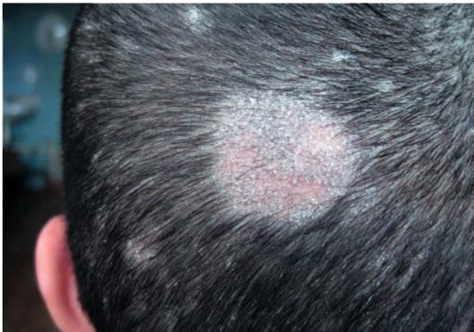 Страшные последствия грибка кожи головы