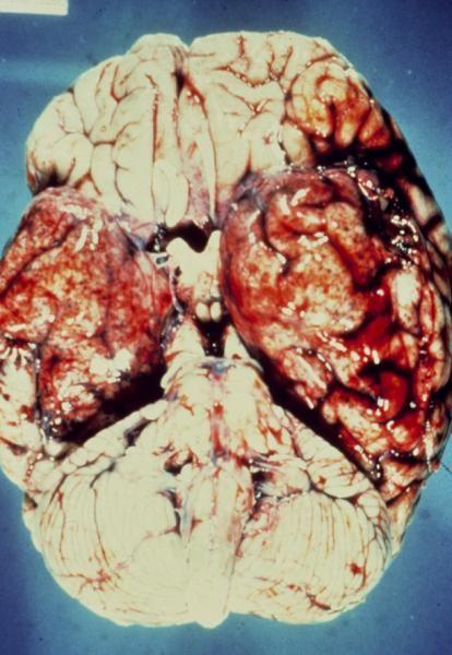 Признаки проявления энцефалита будут зависеть от того какой участок мозга был поражен