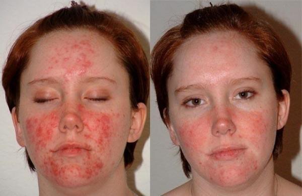 Симптоматика демодекоза схожа с угревой сыпью