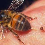 Что нужно делать, если укусила пчела?