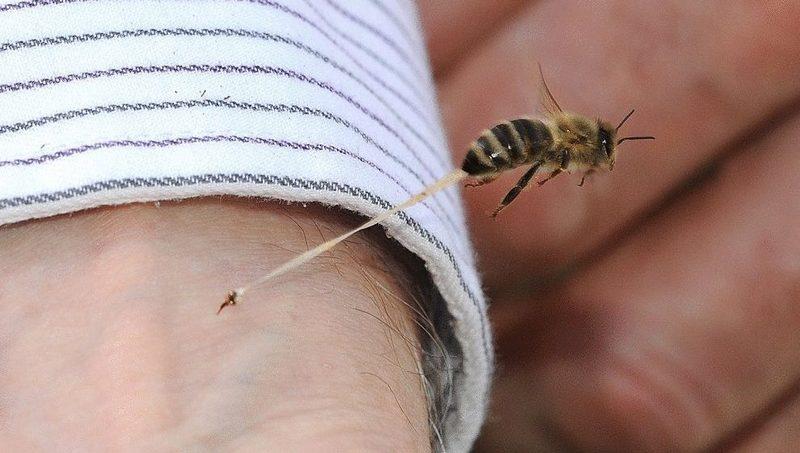 Что нужно делать, если укусила пчела или оса