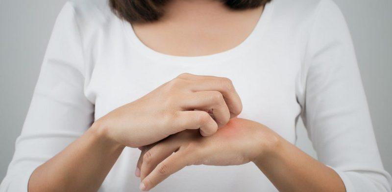 Как распознать аллергию на укусы комаров